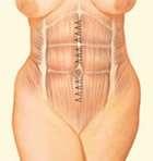addominoplastica sutura muscoli