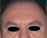fronte uomo dopo trattamento con botulino