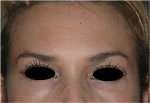 rughe frontali dopo infiltrazione con botulino