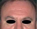 rughe frontali uomo prima del trattamento con botulino