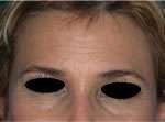 rughe frontali prima dell'infiltrazione con botulino
