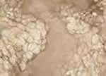 cellule dopo cavitazione