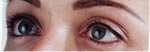 dermopigmentazione post