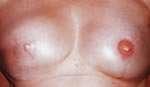 dermopigmentazione pre