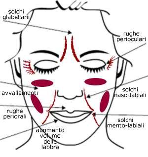 rughe solchi avvallamenti del volto