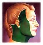 incisioni nel lifting cervico facciale