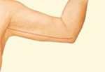risultato del lifting delle braccia