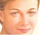 risultato del liftin medio facciale