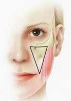 lifting medio facciale fase 2