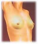 incisioni cutanee