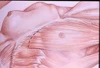 ricostruzione mammaria fig.1