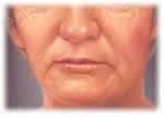 inestetismi del volto