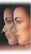 rimozione di un triangolo di setto nasale