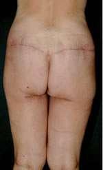 torsoplastica post