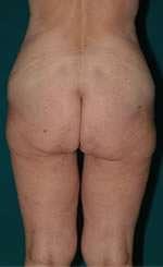 torsoplastica pre