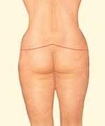 cicatrici nella torsoplastica fig.1