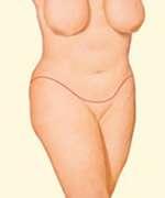 cicatrici nella torsoplastica fig.2