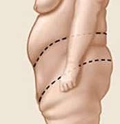suture nella torsoplastica