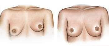 asimmetria mammaria prima e dopo l'intervento di correzione