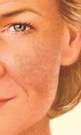 macchie solari sul volto