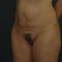 addominoplastica pre
