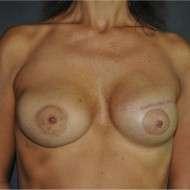 ricostruzione mammaria differita espansore protesi