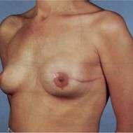 ricostruzione mammaria immediata con protesi