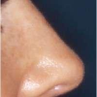 rinoplastica post