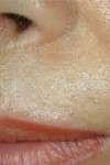 correzione rughe labbro superiore con laser CO2 ultrapulsato