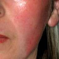 correzione rughe con skin resurfacing