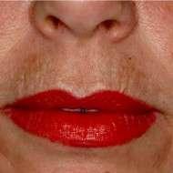 rughe labbro superiore