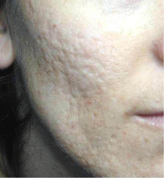 Ruvidità di pelle di faccia dopo posti