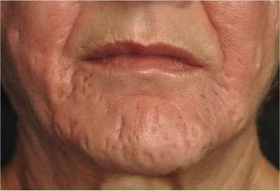 Come badare a pelle di faccia secca con posti