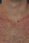 correzione cicatrice da tracheostomia post
