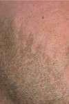correzione cicatrice al volto post