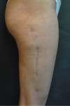 correzione cicatrice post