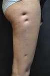 correzione cicatrice pre
