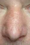 correzione cicatrice al naso post