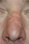 correzione cicatrice al naso pre