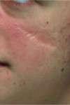 correzione cicatrice al volto pre