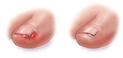 unghia incarnita trattamento non chirurgico