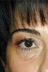 blefaroplastica inferiore pre