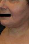 lifting cervico-facciale post