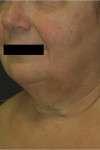 lifting cervico-facciale pre