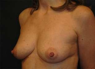 lipofilling mammelle