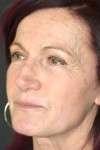lipofilling volto