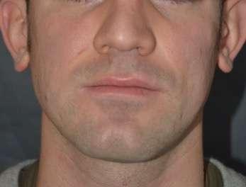 lipofilling cicatrici acne